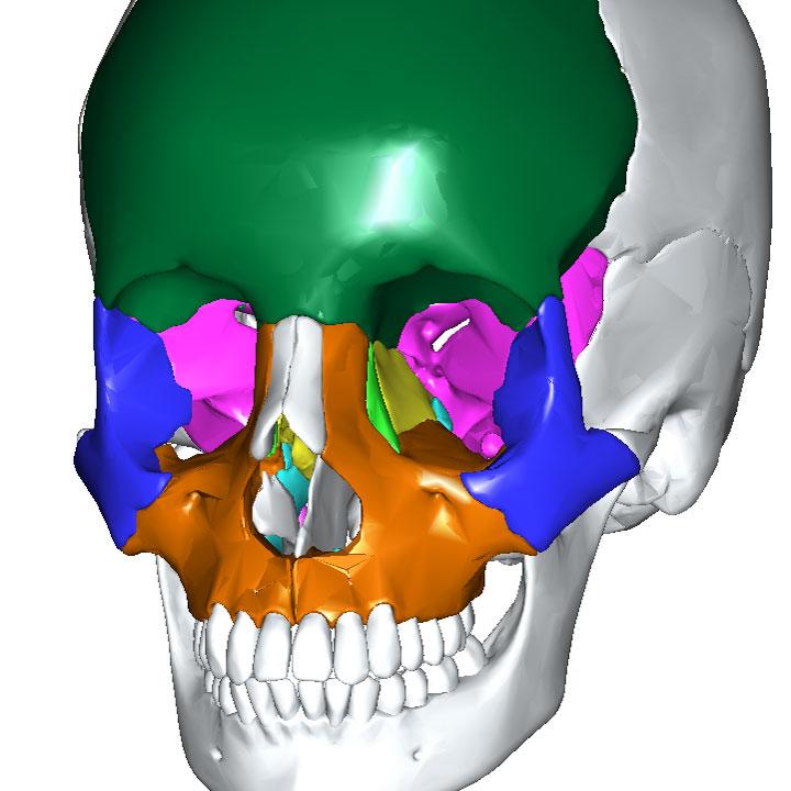 眼窩の壁をつくる骨
